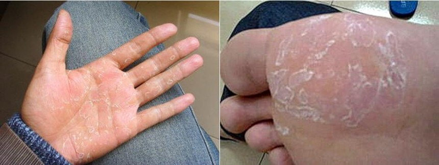 灰指甲治疗公司