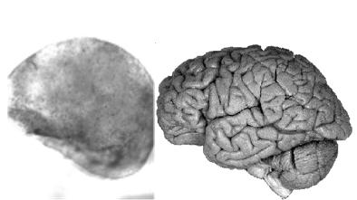 合成脑模型.png