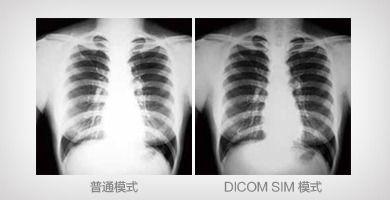 DICOM SIM模式 - Epson CB-G7100产品功能