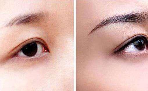洗眉前后需要注意的事项