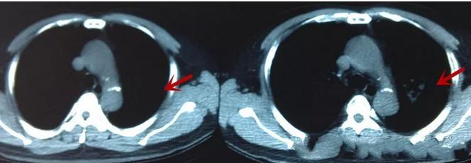 早期肺癌6.png