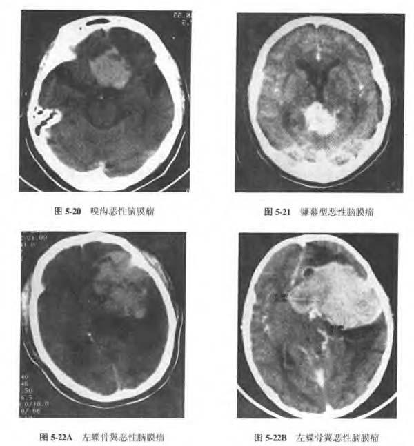 恶性脑膜瘤诊断1.png