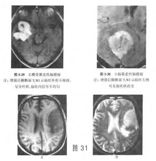 恶性脑膜瘤诊断5.png