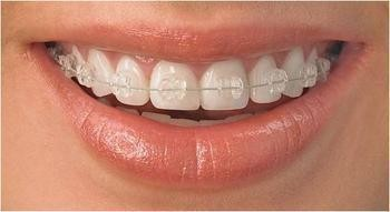 牙齿矫正方法图片